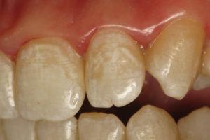 современное лечение некариозных поражений, фторирование зубов харьков