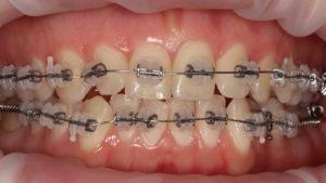положение зубов, брекеты, ортодонтия харьков