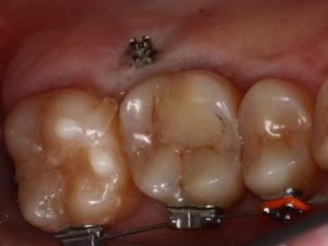 микроимпланты зубы, микроимплант зубной, ортодонт харьков