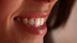 отбеливание зубов харьков, отбеливание зубов виды, отбеливание зубов до и после