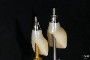 zubnoj-implant-harkov